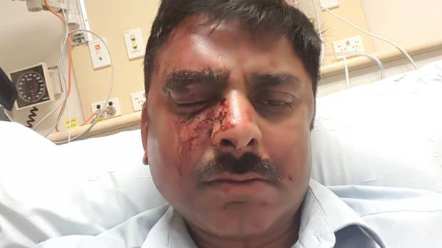 Three men assaulted Vineet Mahajan just after midnight on Tuesday morning.