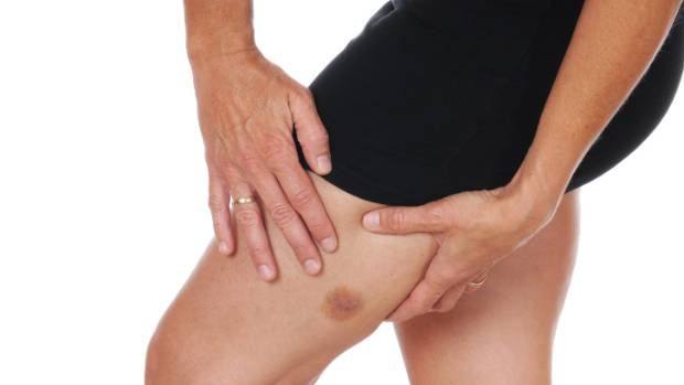 Reduce your alcohol consumption, quit smoking and taking vitamin supplements may help bruises to heal more quickly.