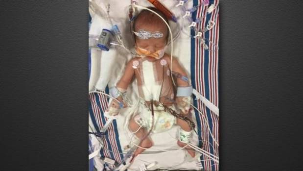 An image of Kimmel's son Billy in hospital.