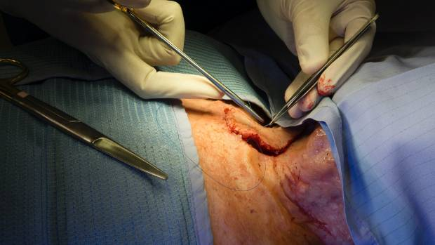 Surgeons often feel compelled to keep stitching, even though the practice session is over.
