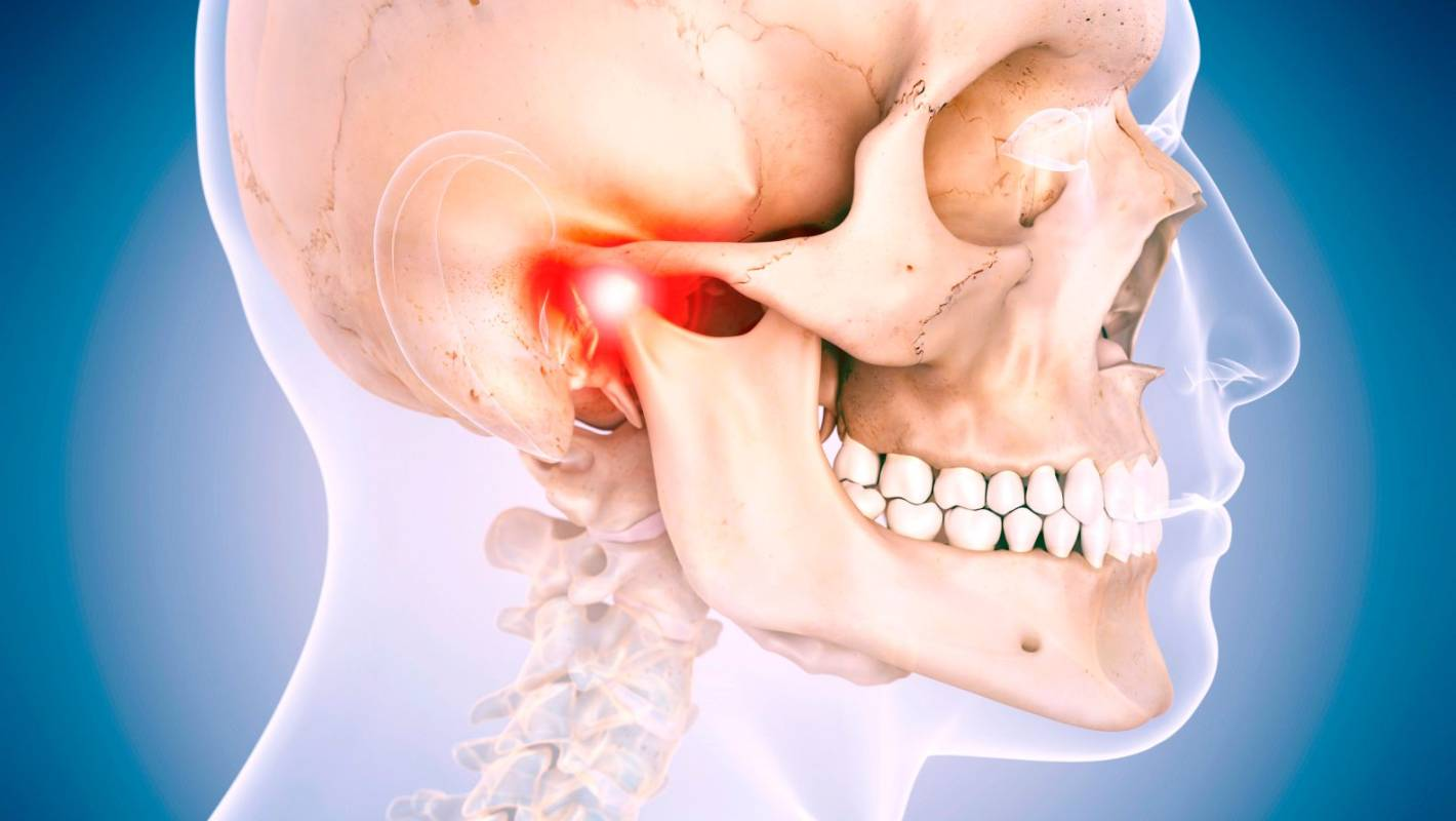 If you hear a click in your jaw, this is what you need to know | Stuff.co.nz
