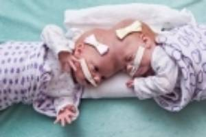 The twins before their separation at the Philadelphia hospital.