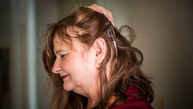 What the cochlear implant looks like on the side of Vivienne's head.