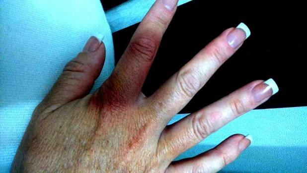 Some of the injuries to Dowling's hands after she tried to keep a hold of a fence during the blast.