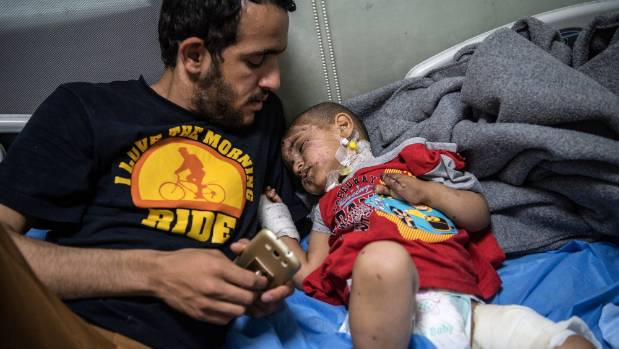 Hadi Talib comforts his neighbour's child, three year old Eslam Ahmad, who, along with his mother and father, received ...