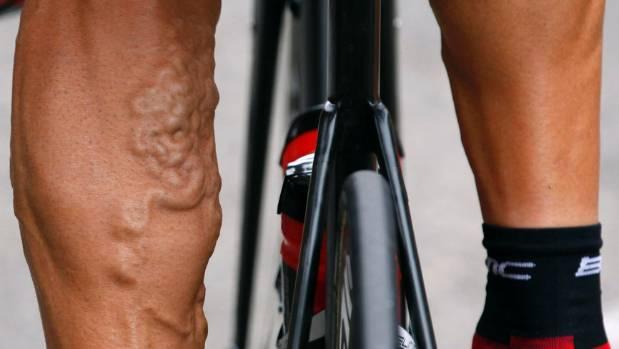 Tour De France Legs
