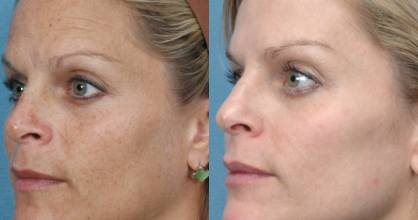 Elos pigmentation treatment promises to remove signs of sun damage.