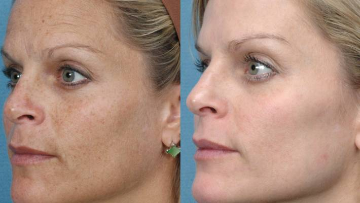 Facial rejuvination photo sun spots