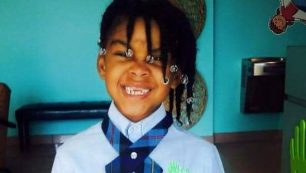 8-year-old girl dies months after drinking boiling water on dare
