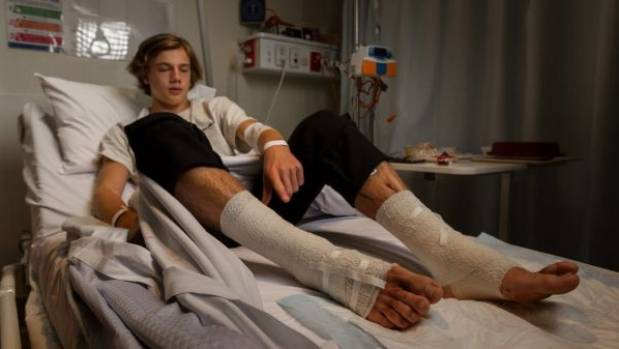 GRAPHIC WARNING: Sea creatures feast on teenager's feet