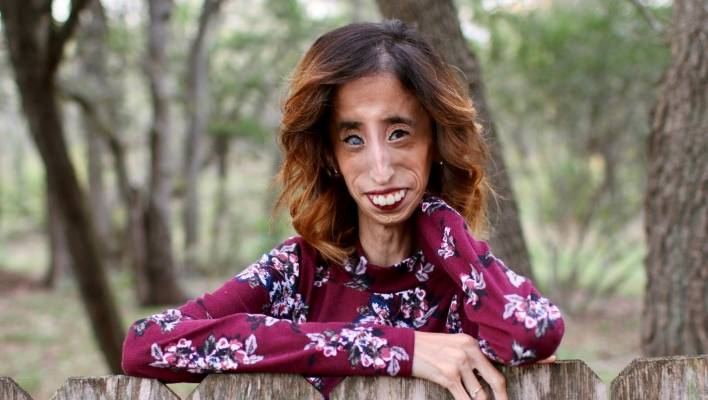 How Being Called The Worlds Ugliest Woman Changes Your Life  Stuffconz-6773