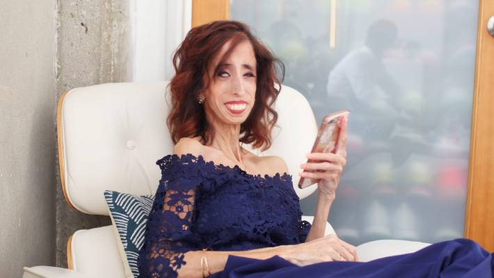 How being called 'the world's ugliest woman' changes your ...