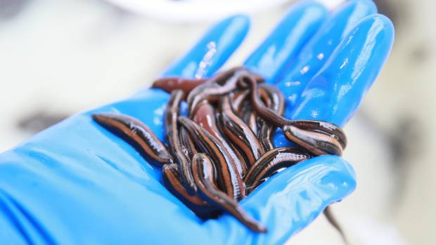 Using leeches comes with risks such as on-going bleeding, and sometimes people need a blood transfusion if they keep ...