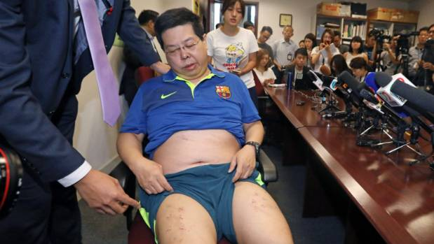 Democratic Party member Howard Lam shows off his injury at a news conference in Hong Kong, China August 11, 2017.