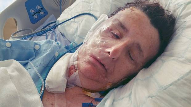 New look: Christine Brown, about 12 hours after her face reconstruction surgery at Dunedin Hospital.