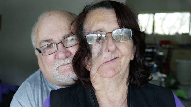 Invercargill woman Christine Brown, with husband Lee, before her face reconstruction at Dunedin Hospital on Tuesday.