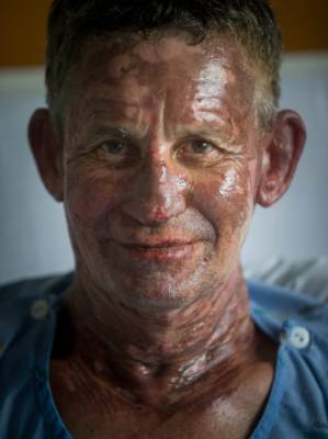 """Skine Lalich, 59, said it was a """"freak accident"""" when his gas BBQ flamed in his face causing burns to his face, neck and ..."""