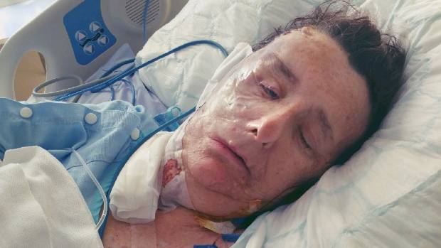 Christine Brown is going home after face reconstruction