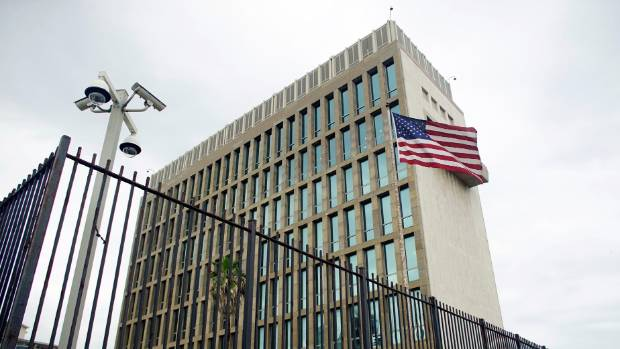 USA diplomats union: Cuba attacks caused mild brain injury