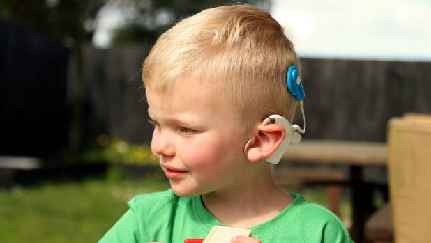 the negative effects of the cochlear implant that has been placed on the deaf community Many people believe you have to be completely deaf to get a cochlear implant that is simply not true in fact, you may be able to hear some sounds (like a baby crying or dog barking) even.