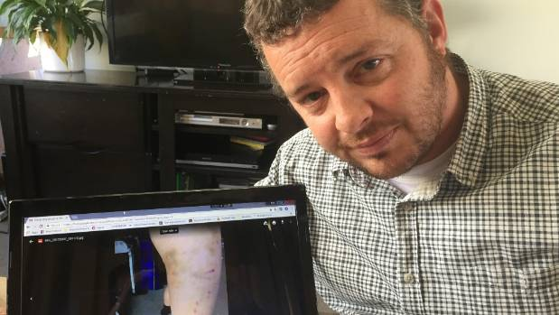 New Plymouth's Blair Staddon with a photo on his lap top of the puncture wounds on his six-year-old daughter's leg after ...