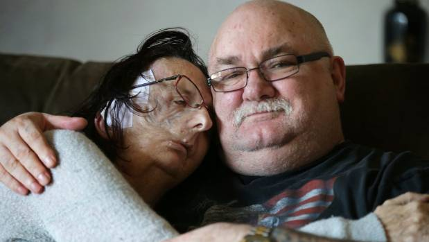 Christine Brown, of Invercargill, at home with husband Lee on Monday, nearly four weeks after face reconstruction at ...