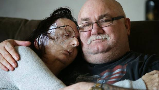 Christine Brown, at home with husband Lee on Monday, nearly a month after face reconstruction surgery. She was ...