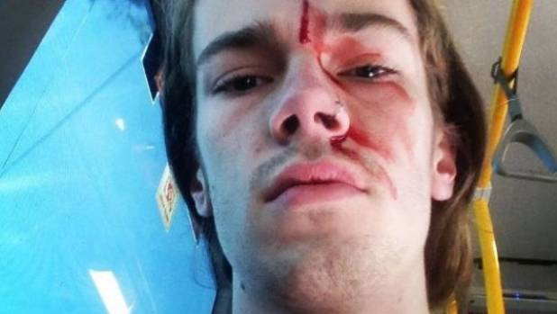 Sean Foster claims he was attacked while trying to stop another man removing rainbow 'Vote Yes' posters from a bus stop ...