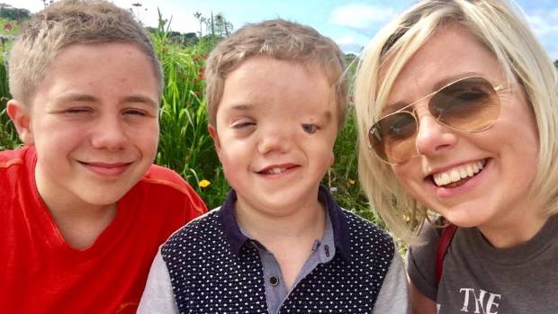 12-year-old Harry Beswick (centre) was born with Goldenhar syndrome. He is pictured with his brother Oliver and mother ...