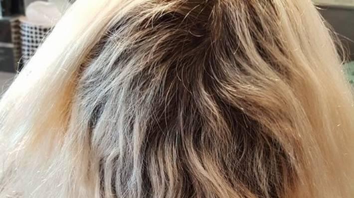Womans Hair Falls Out After A Failed Colour Job At A Wellington