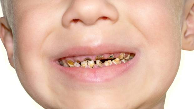 Hundreds of Manawatū children with rotting teeth cost big ...