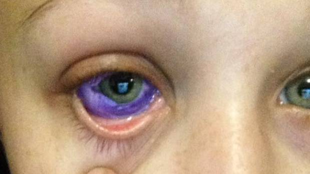 This Woman's Botched Eyeball Tattoo May Leave Her Blind In One Eye