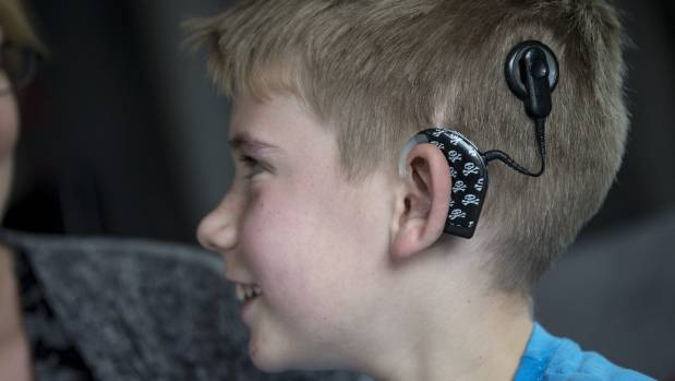 "James Whale, 9, has two cochlear implants, and struggles to hear when there are too many voices at once. ""I sometimes ..."