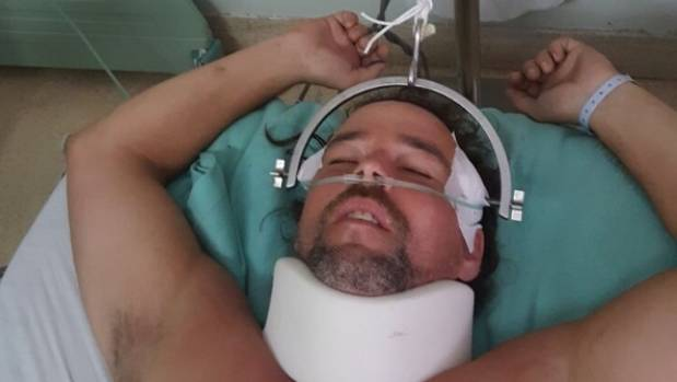 United States man fighting for his life after chasing monkey in Bali