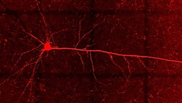 A pyramidal neuron in the brain of a rat that has been bingeing on sugar for 10 weeks. Photo: Courtesy Dr Arnauld Belmer, QUT