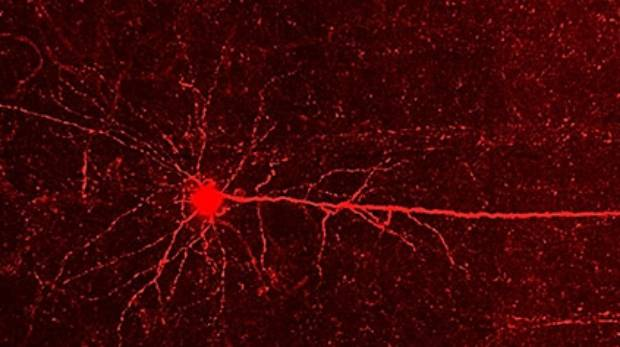 A pyramidal neuron in the brain of a rat fed a normal diet.