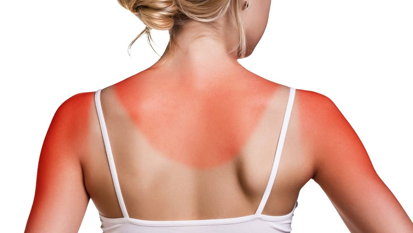 How To Spot The Signs Of Skin Cancer Early Stuff Co Nz