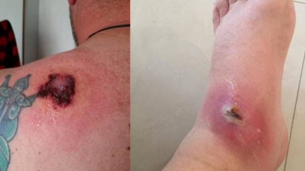 What Does A White Tail Spider Bite First Look Like Spider expert claims t...