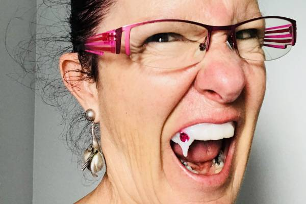 Woman Accidentally Glues Vampire Teeth In Her Mouth Stuff Co Nz
