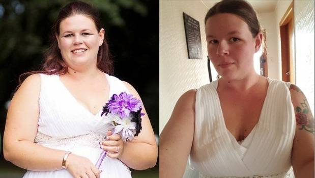 Shannon Anderson, before and after losing 40kg in one year while on the Keto diet - a high fat and low carbohydrate ...