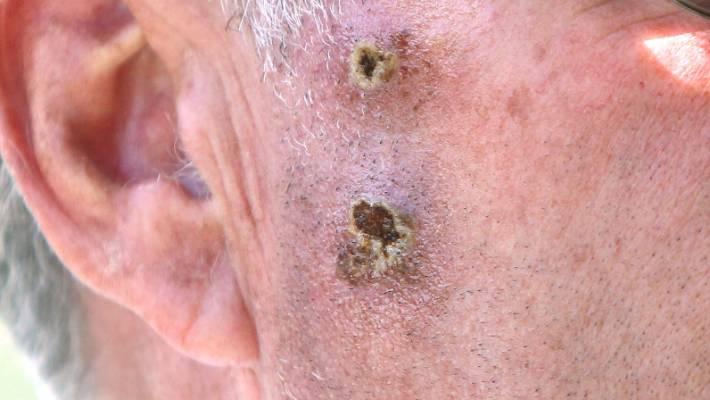 Non Melanoma Skin Cancers Described As Burden On Health System Stuff Co Nz