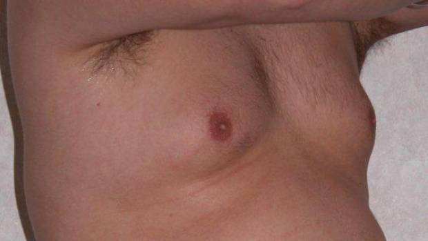 Evidence suggests essential oils make male breasts develop