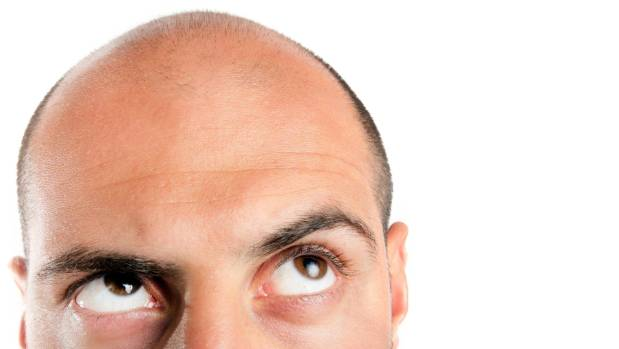 Men with hair loss could save a lot of money by going to their GP instead of a hair-loss company.