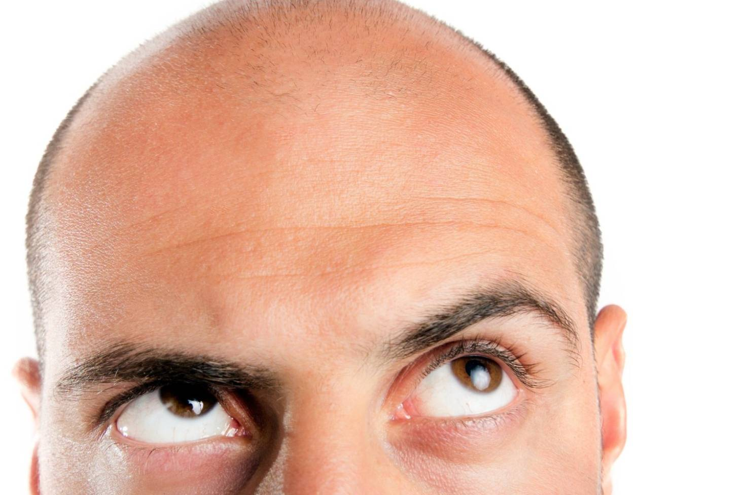 Men's hair loss treatment 'dupe' a quarter the price of