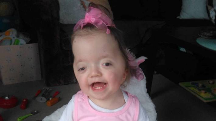 little fighter auckland girl with rare pfeiffer syndrome beats two