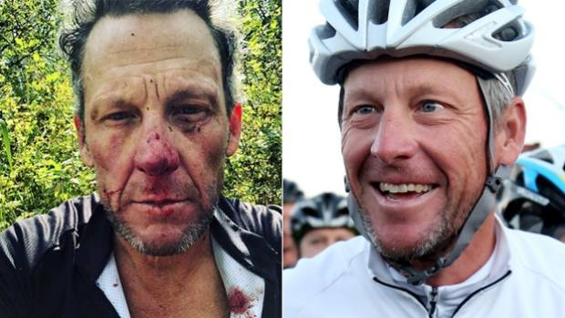 Lance Armstrong shares bloody selfie after bike trail accident