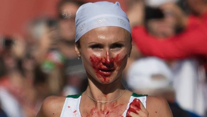 Belarus' gold medal winner Volha Mazuronak is stained with blood after  nosebleed which started just
