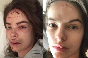 Australian model Robyn Lawley fell down a flight of stairs while having a seizure.