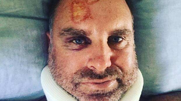 Matthew Hayden fractures spine while surfing and admits: 'I've dodged a bullet'