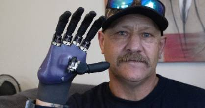Mike Duke with his new bionic hand.